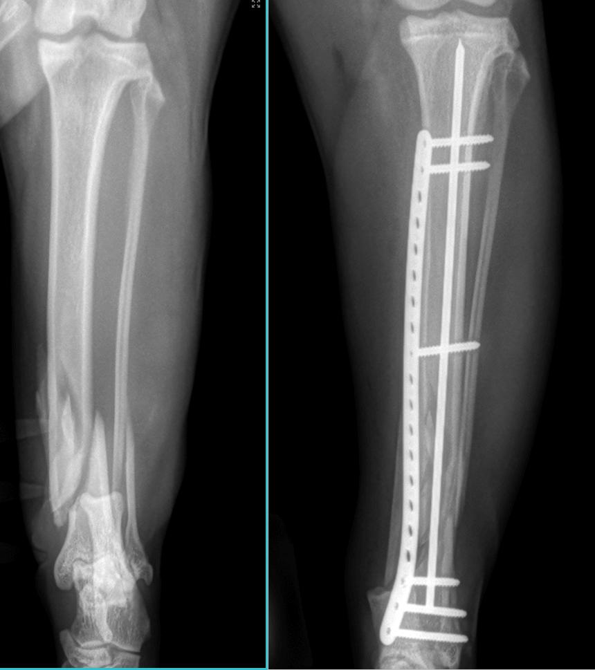 Orthopedic X-Ray